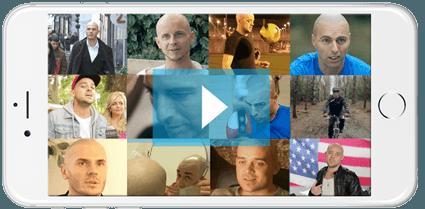 Scalp Micropigmentation Hair Tattoo Videos