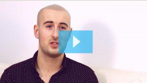 Jack's natural scalp micropigmentation results