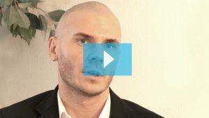 Marcin scalp micropigmentation hair loss video