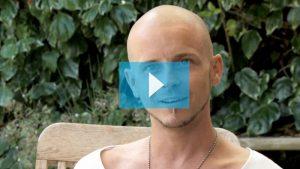 Tristan natural scalp micropigmentation video