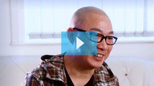 scalp micropigmentation asian