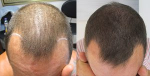 La tricopigmentazione è adatta ai capelli lunghi?