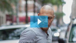 Joey scalp micropigmentation results video
