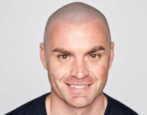 natural scalp micropigmentation result