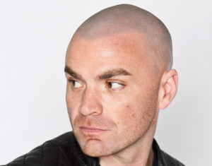 Tom's natural scalp micropigmentation result