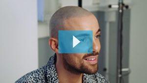 Bobby Scalp Micropigmentation Video