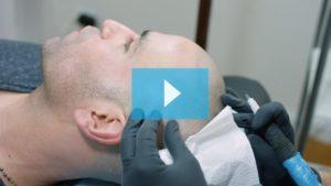 Scalp Micropigmentation New York
