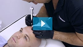 Testimonianza video di Liam e della sua tricopigmentazione permanente