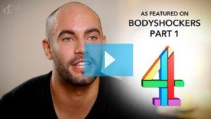 Testimonianza video di Adam e della sua tricopigmentazione permanente 1