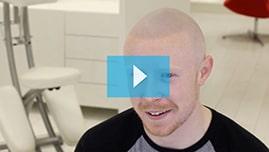Testimonianza video di Anthony e della sua tricopigmentazione permanente