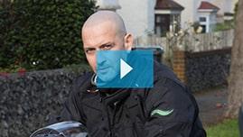 Testimonianza video di Antonio C e della sua tricopigmentazione