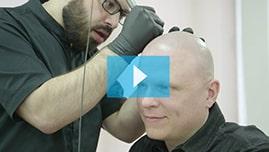 Testimonianza video di Ken e della sua tricopigmentazione permanente
