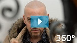 Testimonianza video di Luis e della sua tricopigmentazione permanente 360