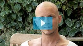 Testimonianza video di Tristan e della sua tricopigmentazione permanente