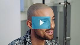 Testimonianza video di Bobby e della sua tricopigmentazione permanente