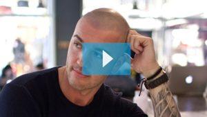 Testimonianza video di Michael e della sua tricopigmentazione permanente