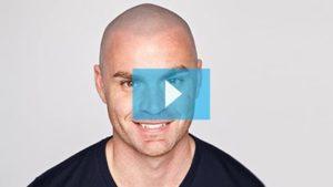 Testimonianza video di Tom e della sua tricopigmentazione permanente
