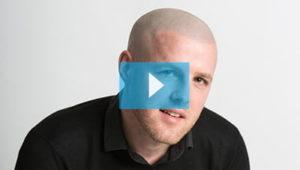 Scalp Micropigmentation Aaron