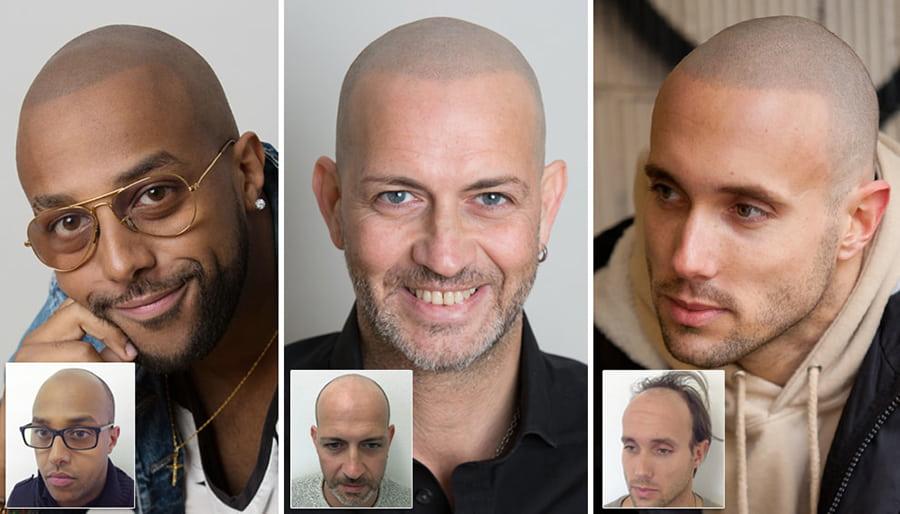 Immagini di tricopigmentazione permanente del cuoio capelluto