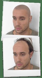 tatuaggio dei capelli