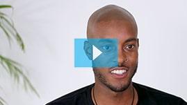 Testimonianza video di Stefan e della sua tricopigmentazione permanente