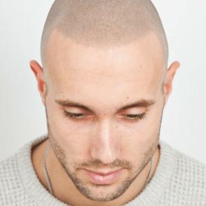 skalp milano La tricopigmentazione permanente