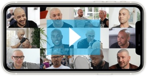 Skalp Videos