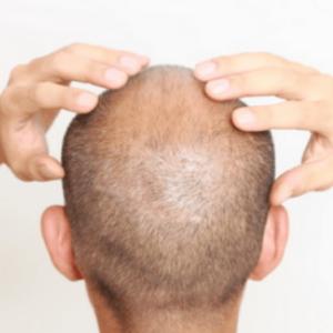 uomo con perdita di capelli