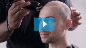 Sam Walker Tricopigmentazione Permanente