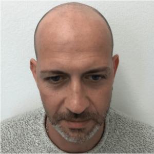 uomo con i capelli grigi prima della tricopigmentazione